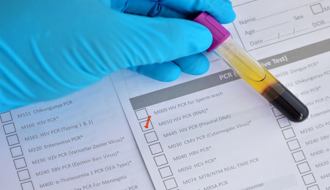 Routine HIV testing is both cost-effective and cost saving compared to the alternatives.