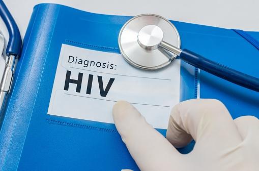 Diagnosing HIV
