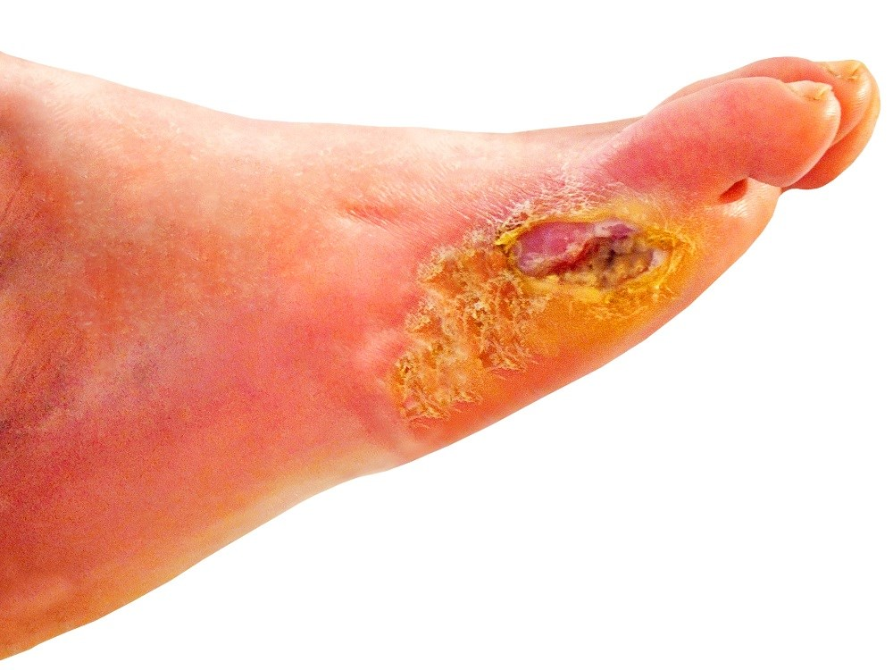 Burden of Care Greater With Diabetic Foot Ulcers and Infections