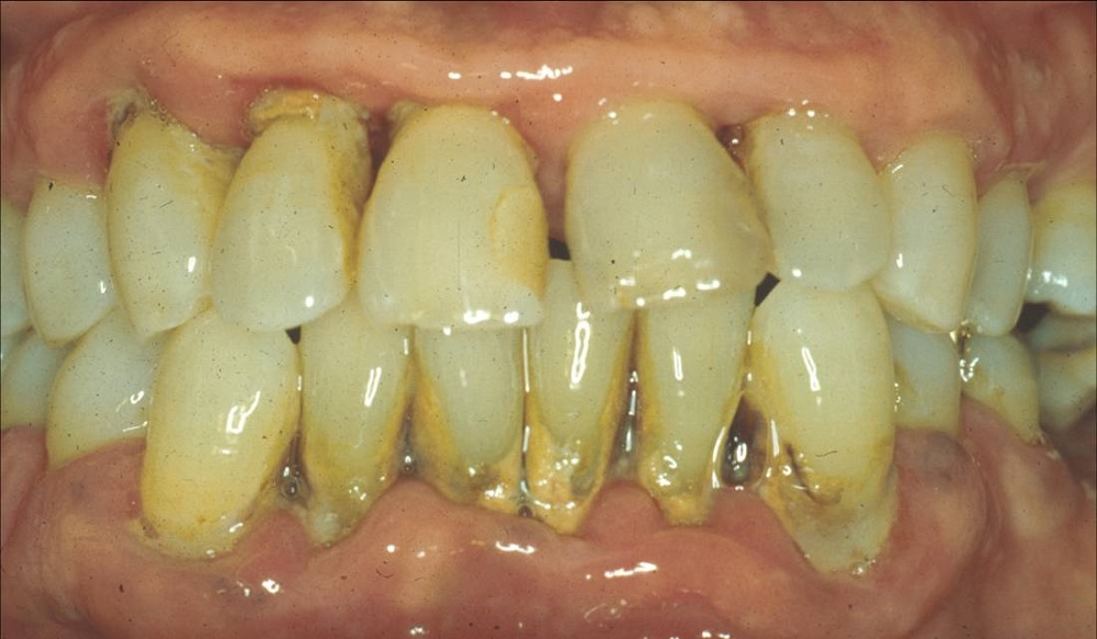 What does periodontitis look like