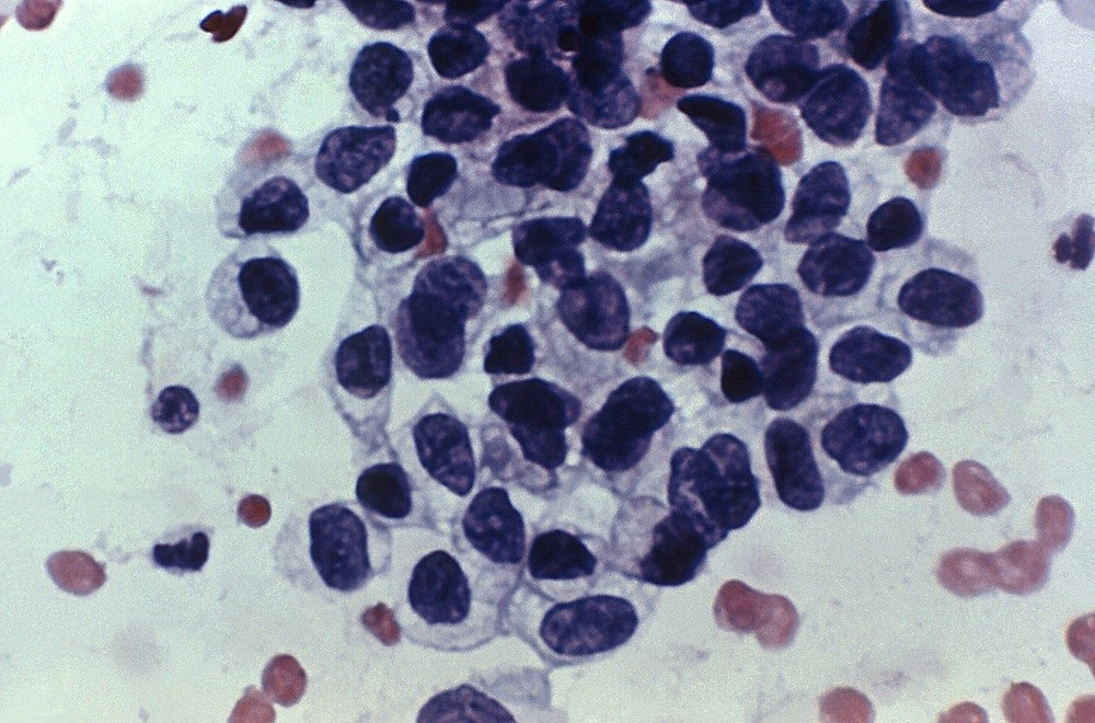 Papanicolaou stained biopsy of vaginal tissue indicative of adenocarcinoma. <i>Photo credit: CDC/ A. Elizabeth Plott, C.T.(ASCP)</i>
