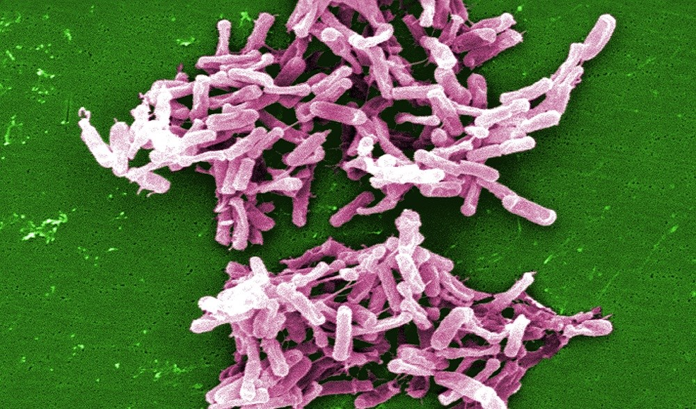 Household Transmission of C difficile May Lead to Community-Associated Cases