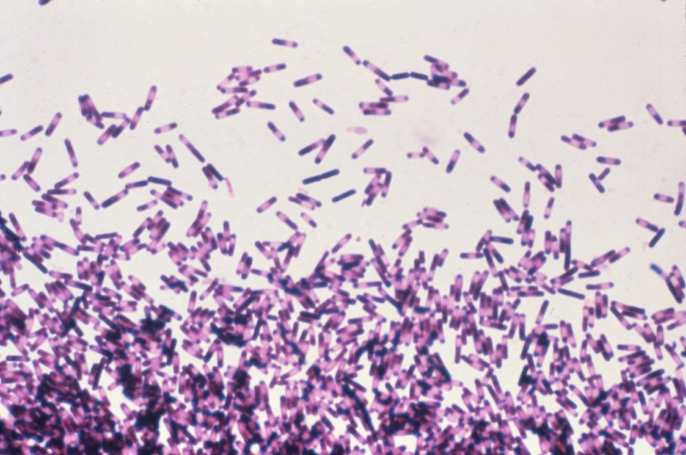 Patients who receive gastric acid suppressants may be at increased risk for recurrent <i>Clostridium difficile</i> infection. <i>Photo Credit: CDC/Dr Gilda Jones.</i>