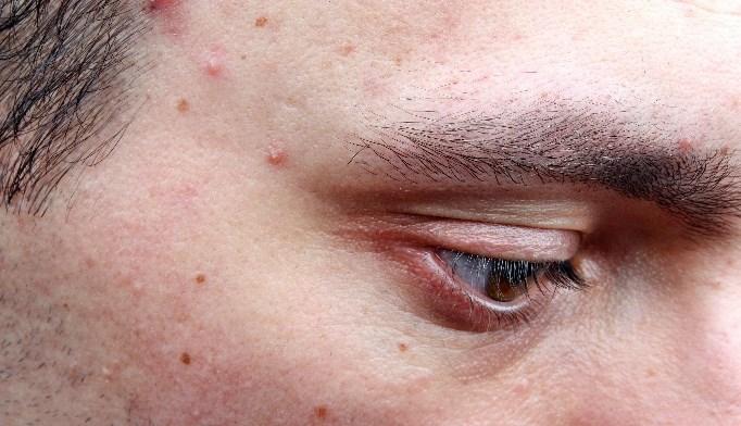 Propionibacterium acnes Triggers Inflammation, Acne