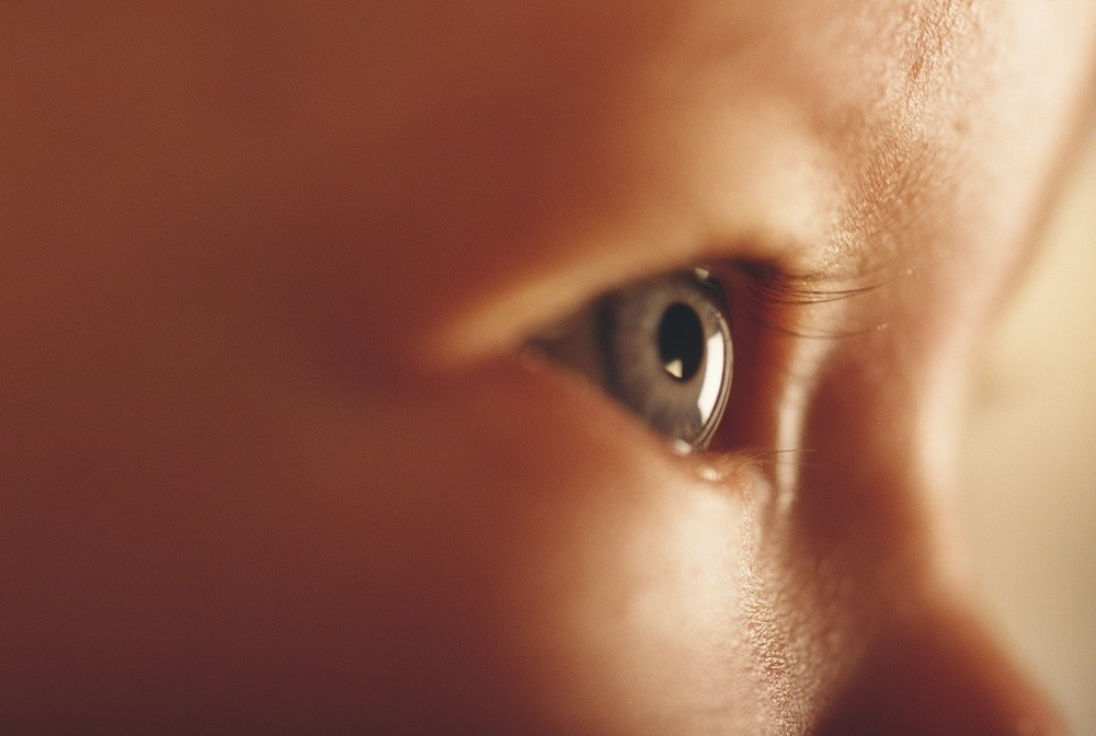 The results showed that the central retinal degeneration was similar to that of cblC deficiency.