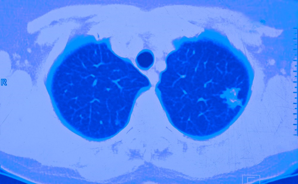 Lung Cancer Risk in HIV Tied to Immune Dysfunction