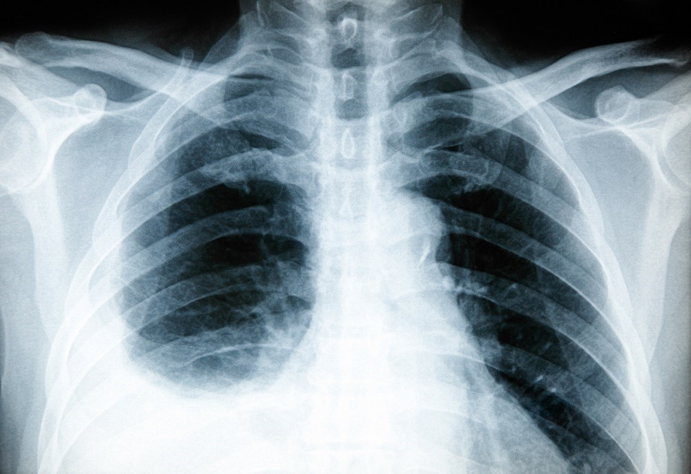 Rosuvastatin May Help in Treating HIV-Infected Patients With COPD