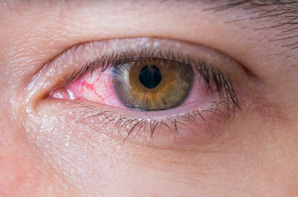 Case of Keratitis Due to <i>K kingae</i> Described in HIV Patient