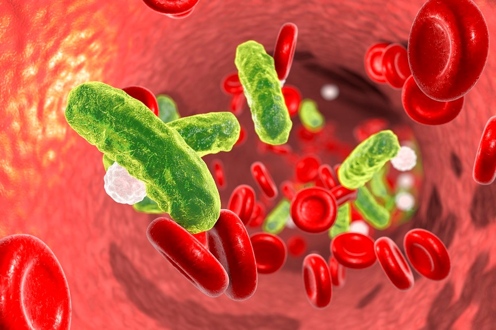 Increased CVD Risk in Men Following Sepsis, Pneumonia