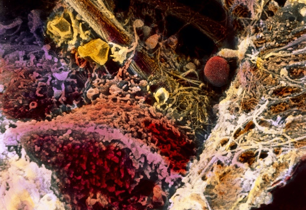 Scanning electron micrograph showing human liver tissue (red-brown) affected by fibrosis. <i>Photo Credit: Professors Pietro M. Motta & Tsuneo Fujita / Science Source.</i>
