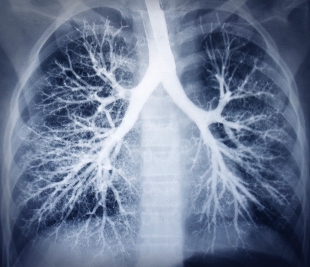 Case Synopsis: Late, Recurrent Pneumonia From Endobronchial Sutures