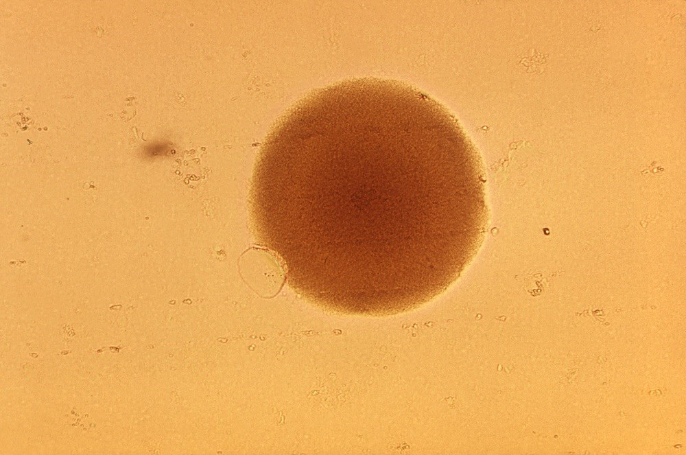 Vaginal microbiome may modify tenofovir delivery. Image: A single <i>Gardnerella vaginalis</i> bacterial colony. <i>Photo Credit: CDC/ Dr. S. Kraus.</i>