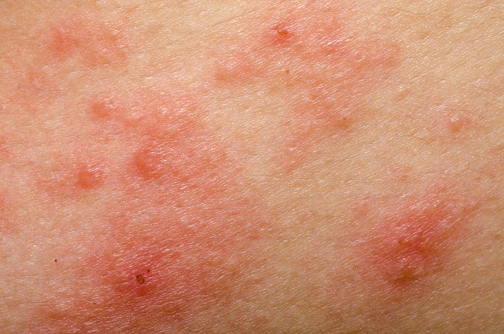 Intramuscular Flu Vaccination Recommended for Patients With Eczema