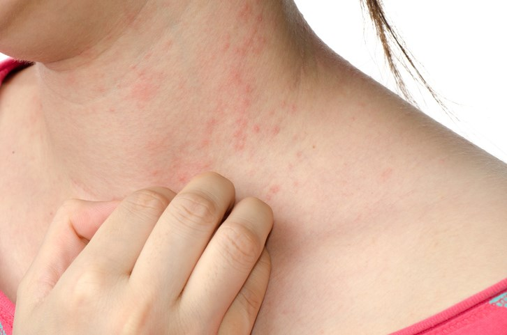 Is Antibiotic Treatment Effective in Children With Mild Eczema?
