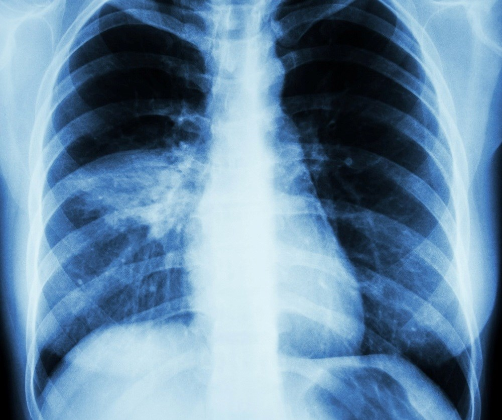 In patients hospitalized with community-acquired pneumonia, elevated cardiac troponin T is a strong predictor of mortality.
