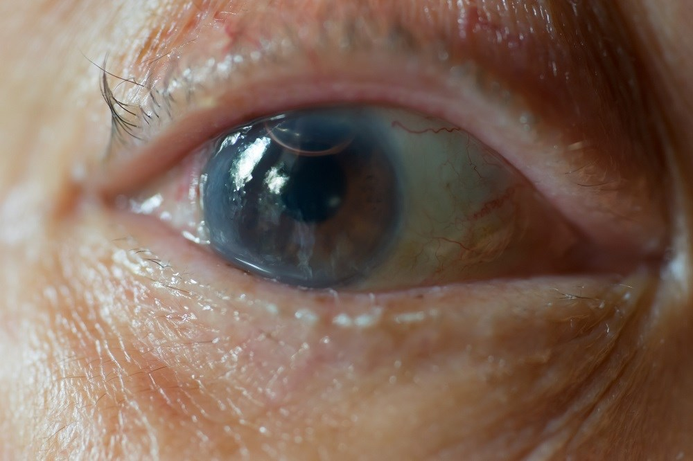 HCV infection, even without the complication of cirrhosis, is associated with an increased risk of cataracts.