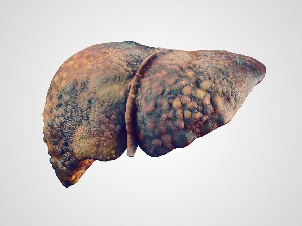 Statins Reduce Risk of Cirrhosis Decompensation in HBV, HCV