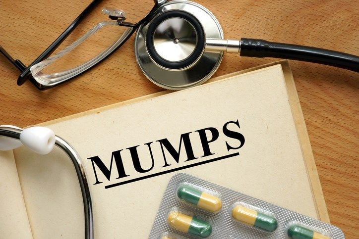 Complications from mumps may also occur at different times throughout the illness even without parotitis.