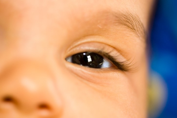 Ophthalmic Exam Recommended in Infants With Congenital Zika Syndrome