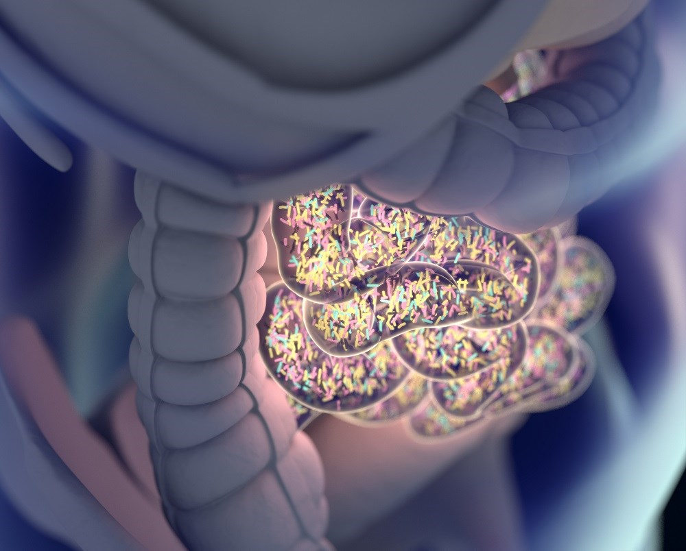 Examining the Link Between Migraine and Gastrointestinal Disorders