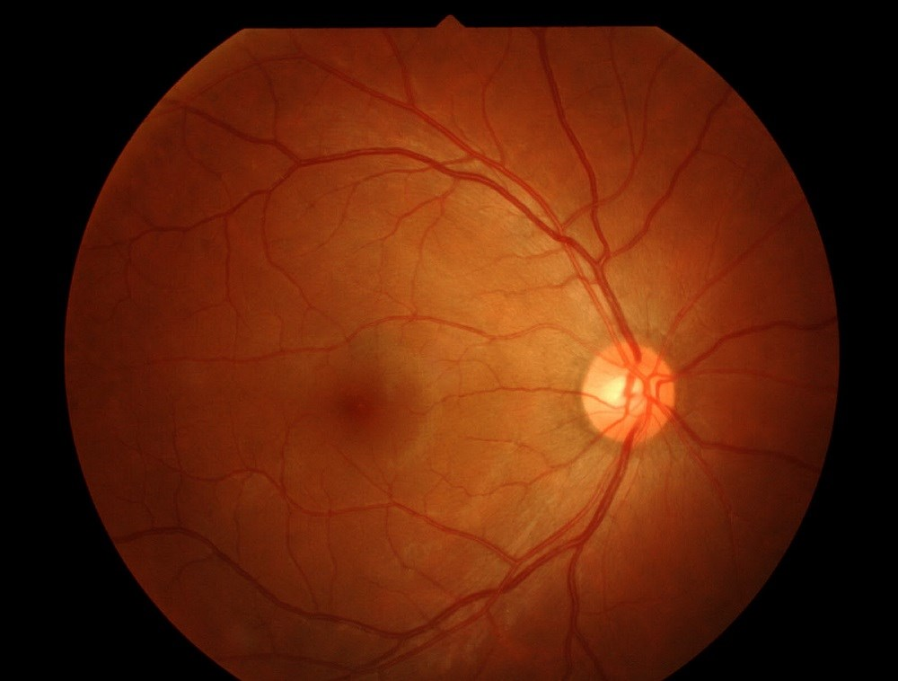 Novel Retinal Abnormality Seen in Ebola Survivors