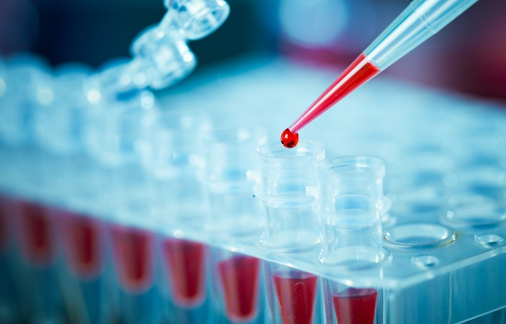 Researchers found that there were no false positives among the plasma or whole blood specimens.