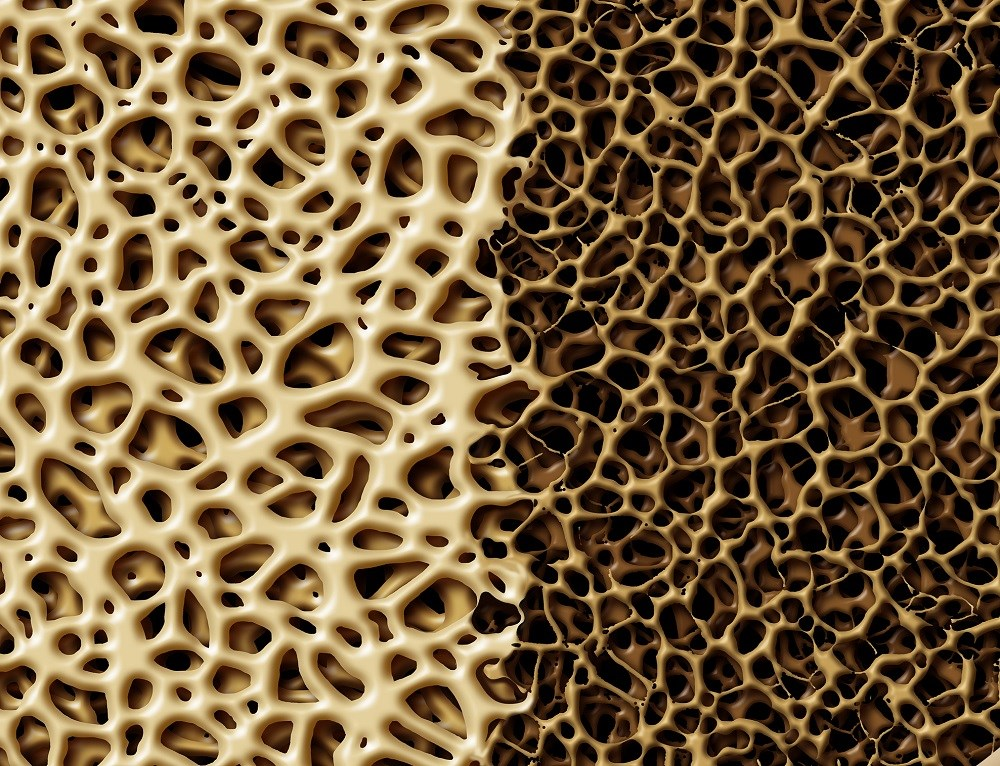 Early ART Initiation May Increase Bone Loss in Patients With HIV