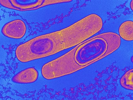 Biotherapeutics for the Prevention of Clostridium difficile Infection