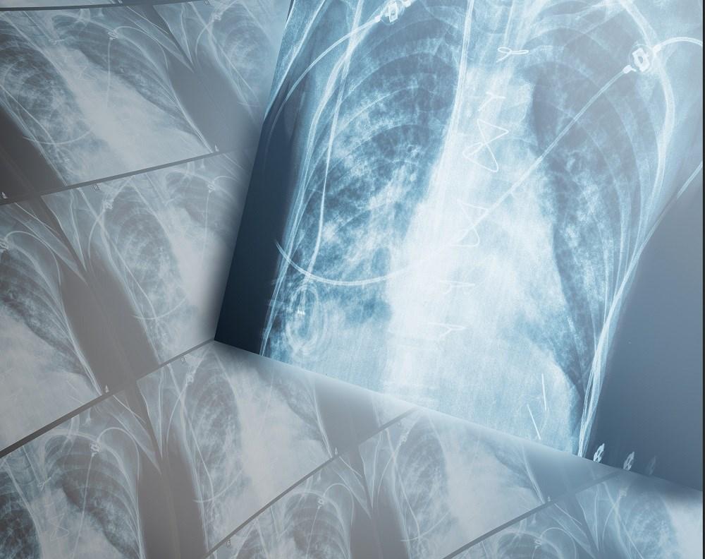 Azithromycin Prevents COPD Exacerbations in H Pylori Seropositive Patients