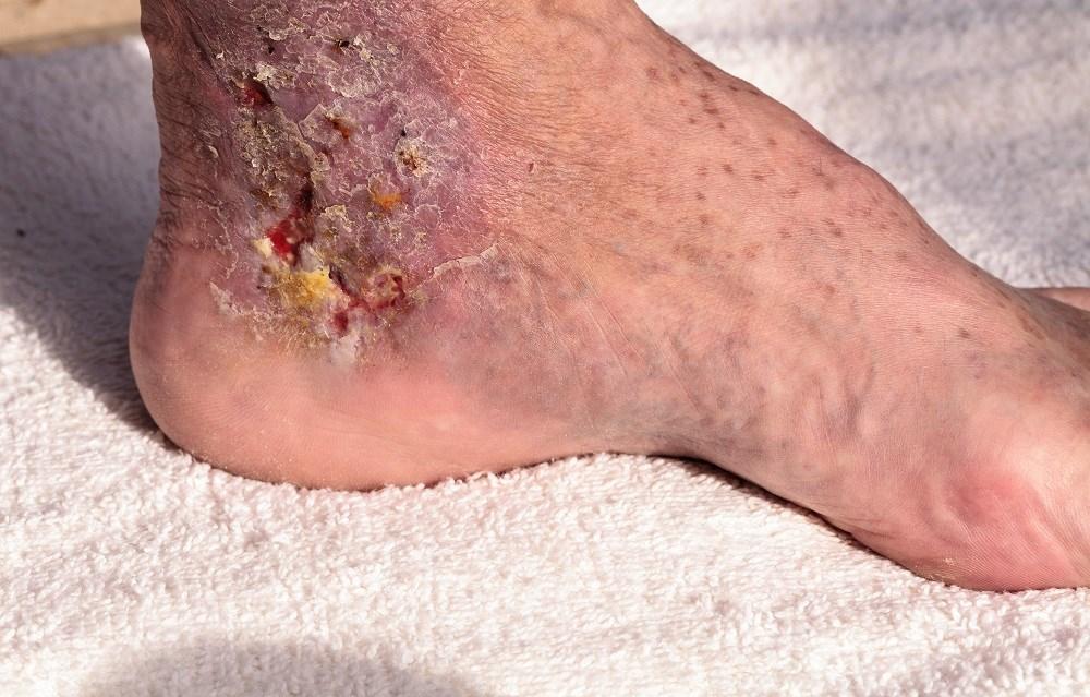 Antibiotic Prophylaxis May Help Prevent Recurrent Cellulitis