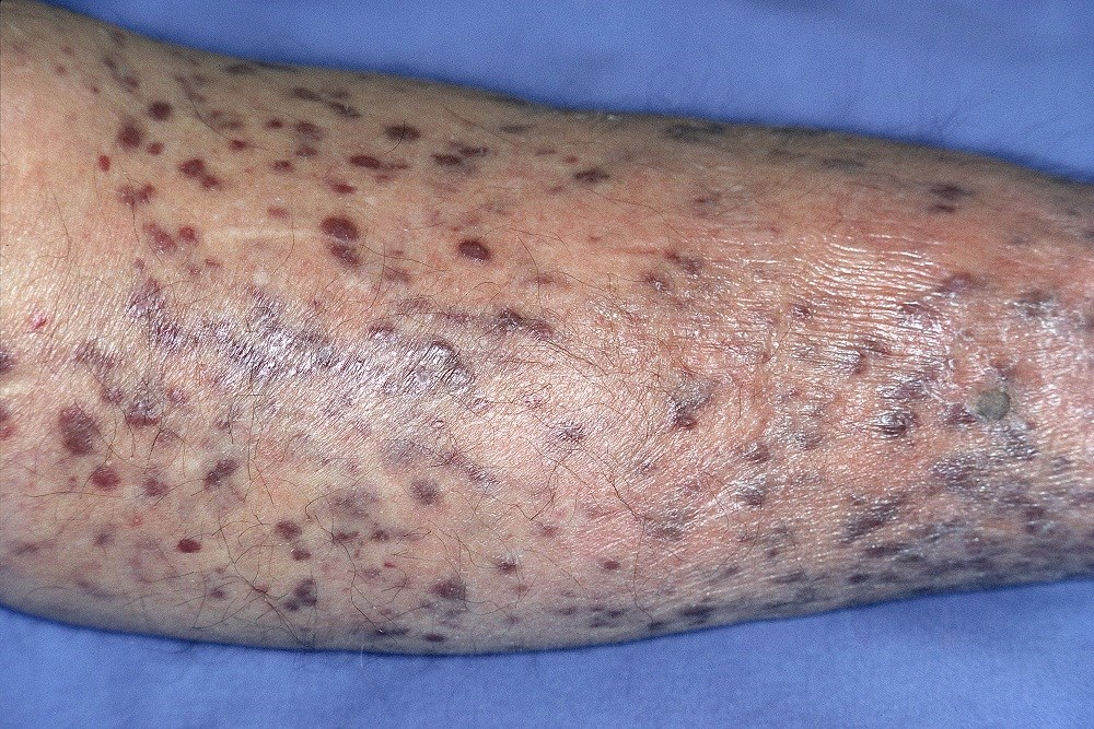 Risk for secondary cancer in patients with HIV who develop Kaposi sarcoma have changed. <i>Photo Credit: ISM</i>