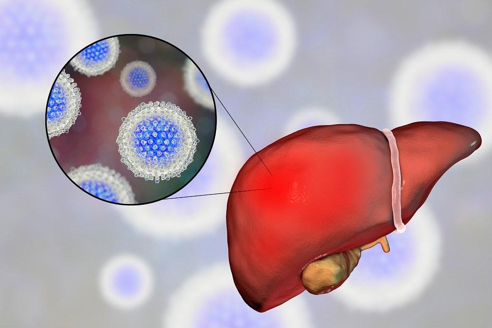 New HCV Guidelines Focus on Patient Population Treatments