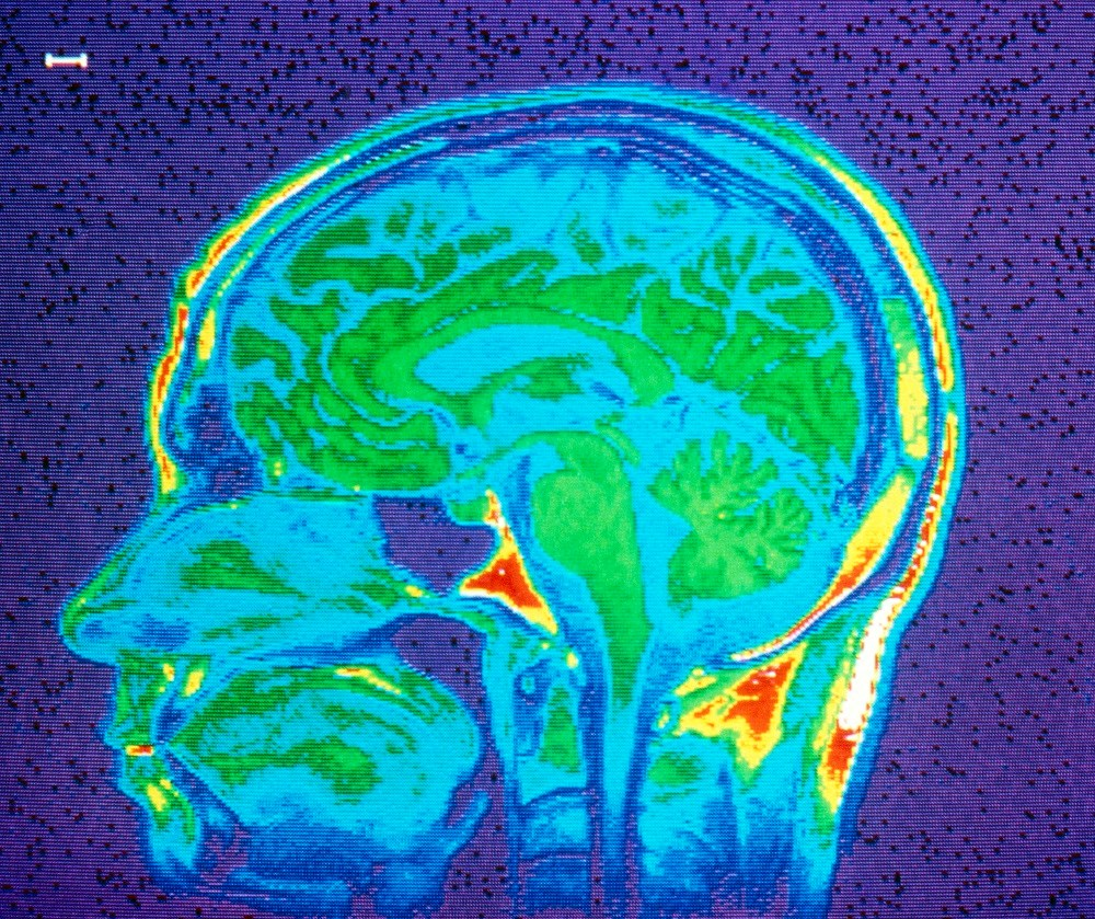 Brain Inflammation Associated With Depression, Anxiety in Multiple Sclerosis