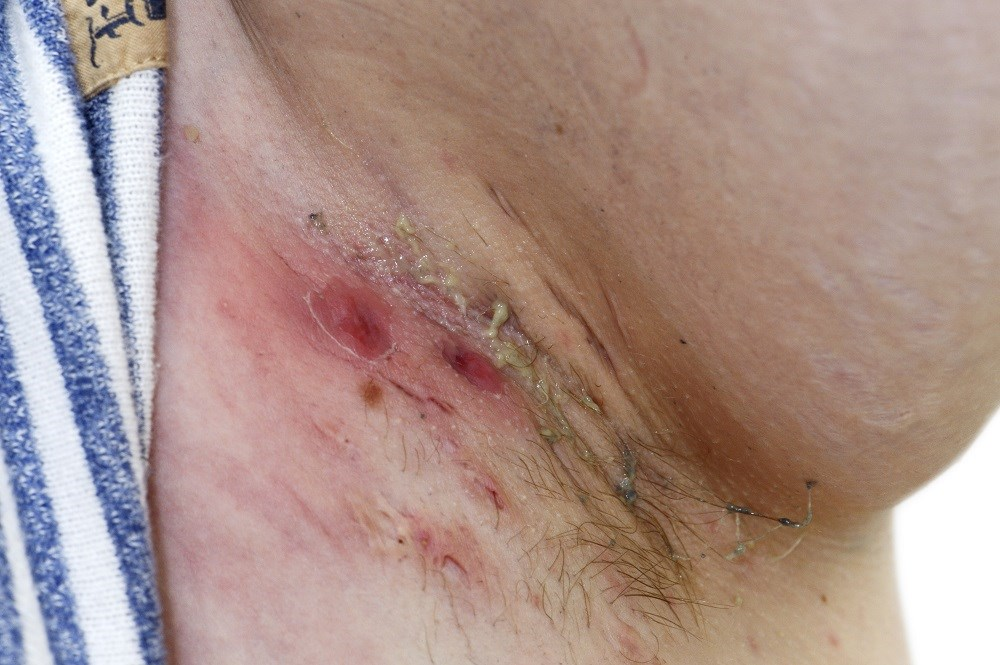 Intravenous Ertapenem May Control Hidradenitis Suppurativa Symptoms