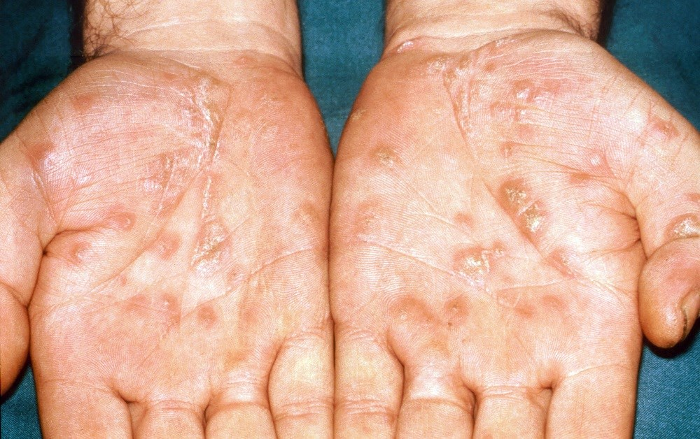 Skin Diseases Remain Common in Older Adults With HIV
