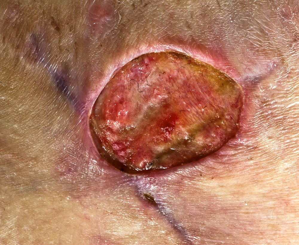 Rapid Decrease in Lesion Size and Pain With Delafloxacin in ABSSSI