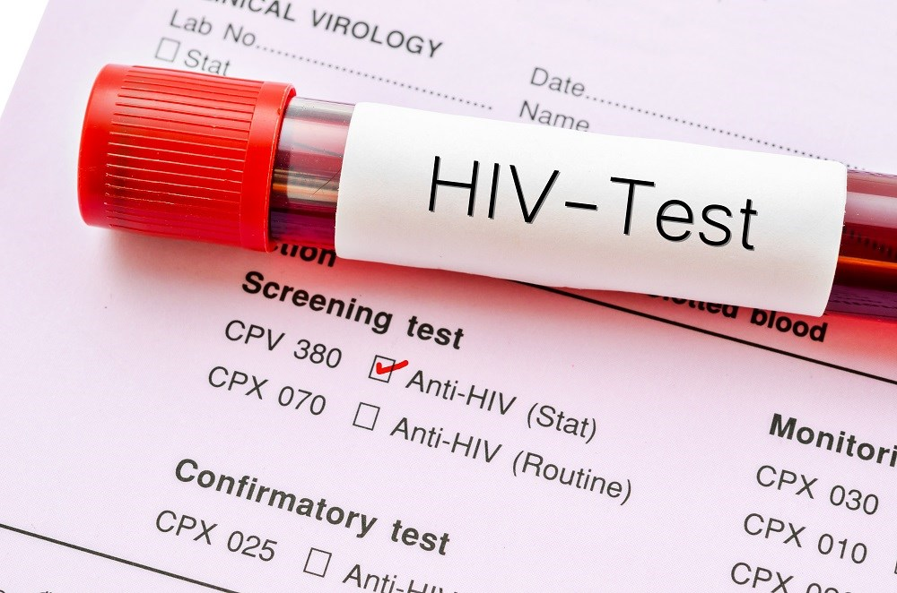Value of Confirmatory Testing of Early Infant Diagnosis for HIV