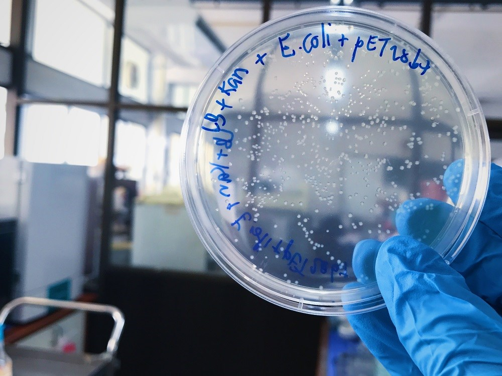 CDC: Multistate Outbreak of E coli Being Investigated