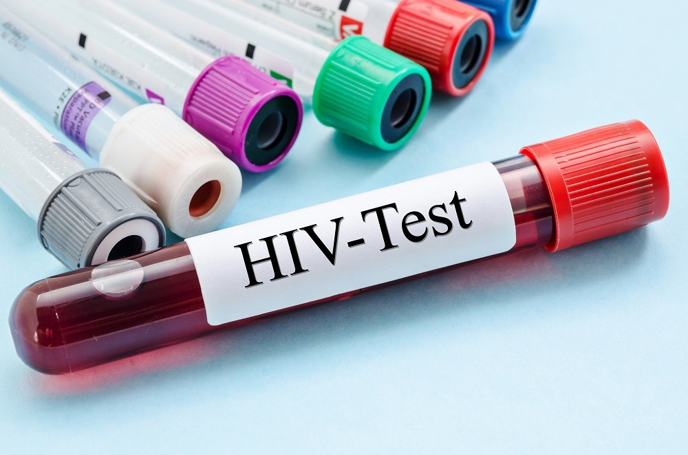 One-Time Routine HIV Screening at Age 25 Optimal With No Risk Factors