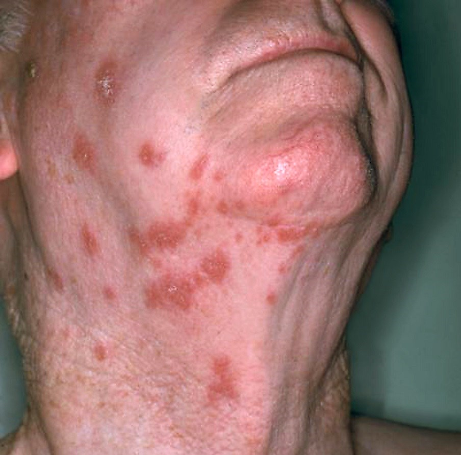 Rash attributed to varicella zoster virus <i> Photo credit: National Institute of Allergy and Infectious Diseases (NIAID) </i>