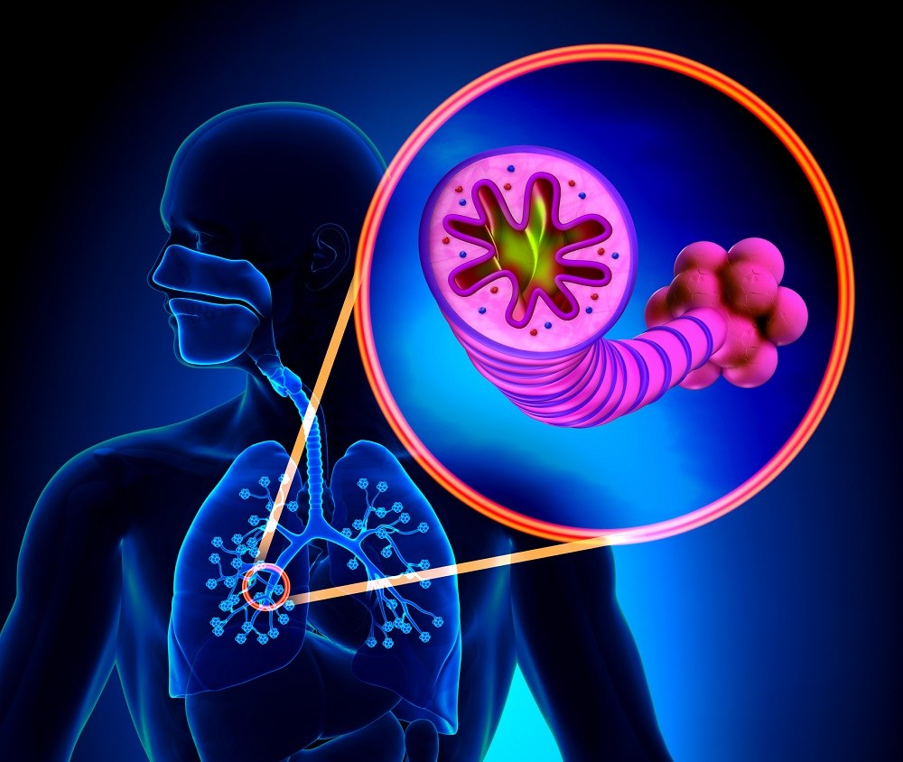 COPD Expected to Increase Through 2030, Especially in Elderly