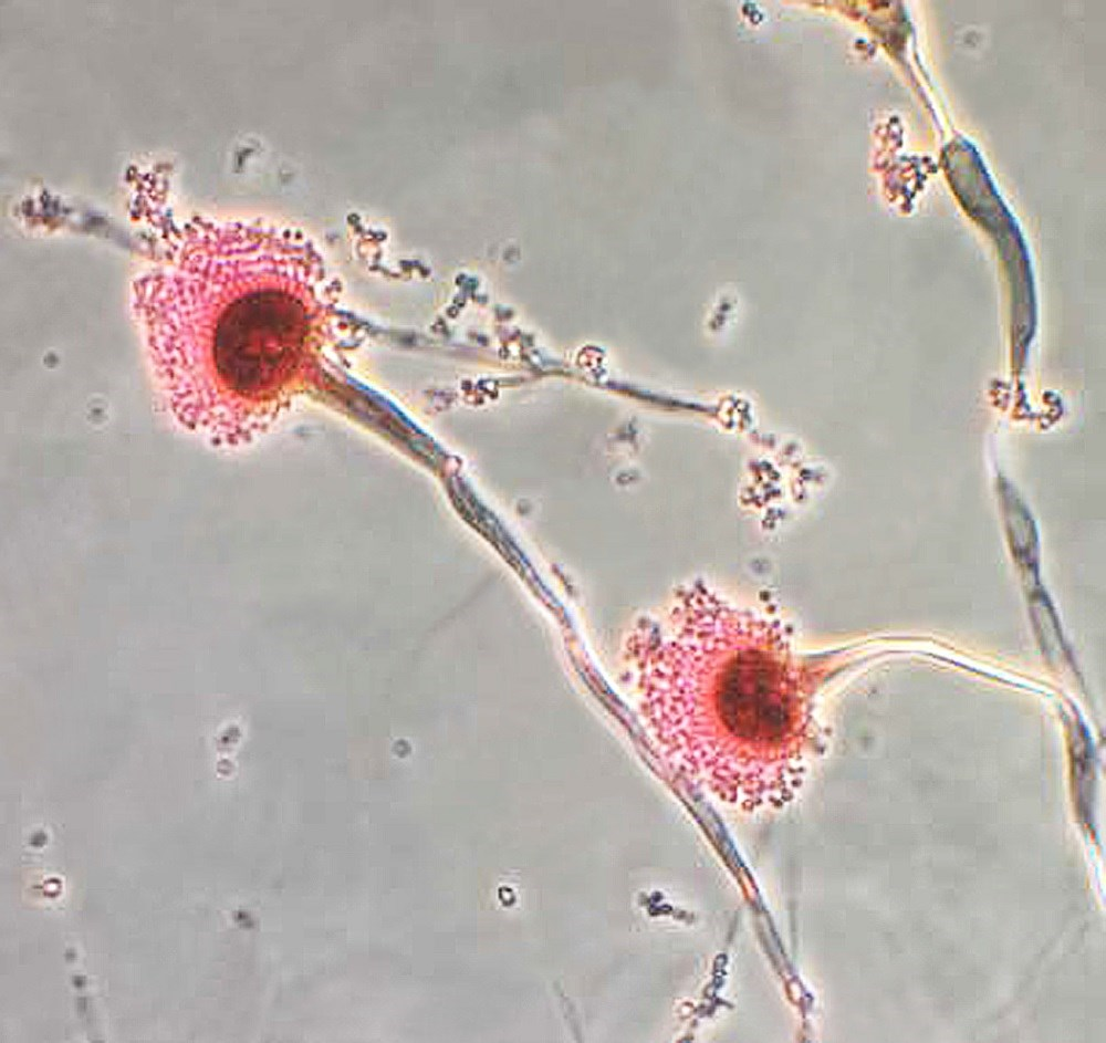 Ultrastructural morphology displayed by the fungal organism <i> Aspergillus fumigatus </i> <i> Photo Credit: CDC </i>