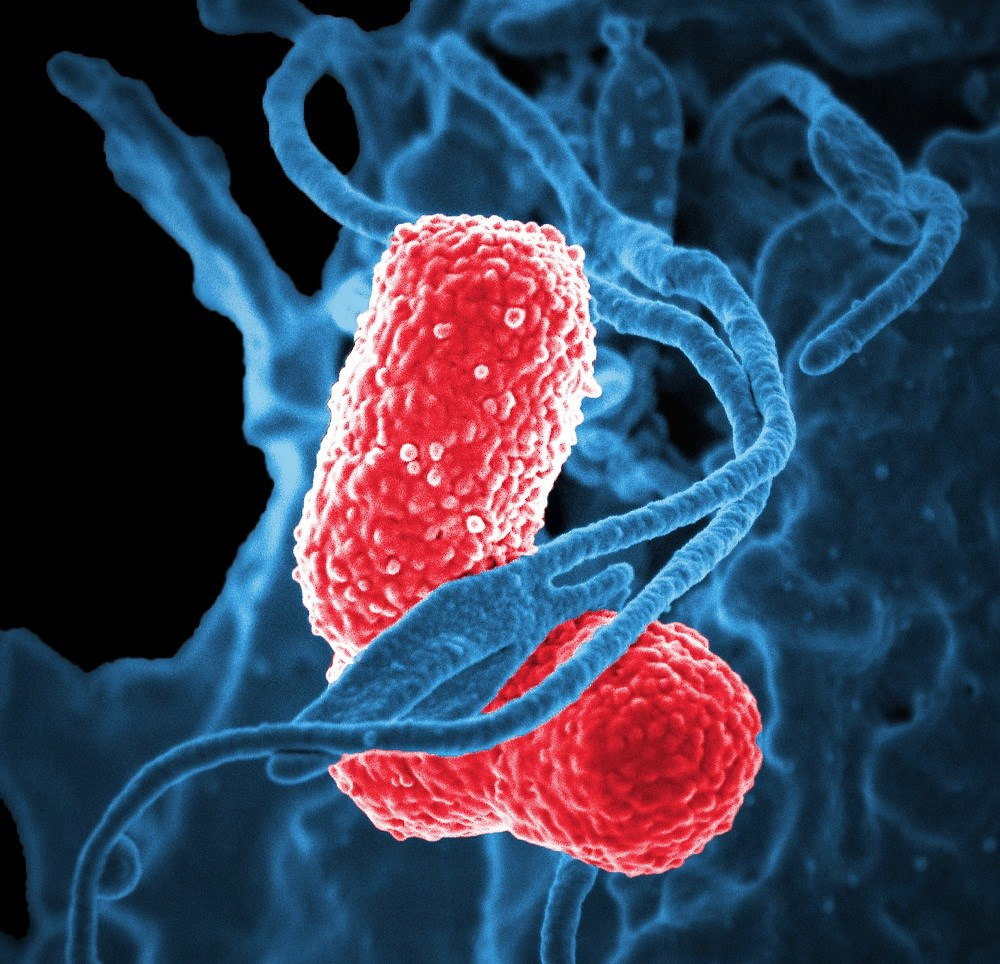 <i>K pneumoniae</i> carbapenemase-producing Enterobacteriaceae epidemiology is complex and highlight the unique challenges facing control efforts.