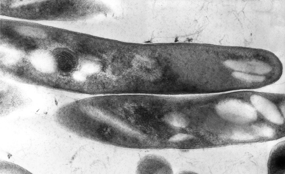 """Ultrastructural details displayed by a number of Gram-positive <i>Mycobacterium tuberculosis </i>bacilli. <i>Photo Credit: CDC/ Elizabeth """"Libby"""" White.</i>"""