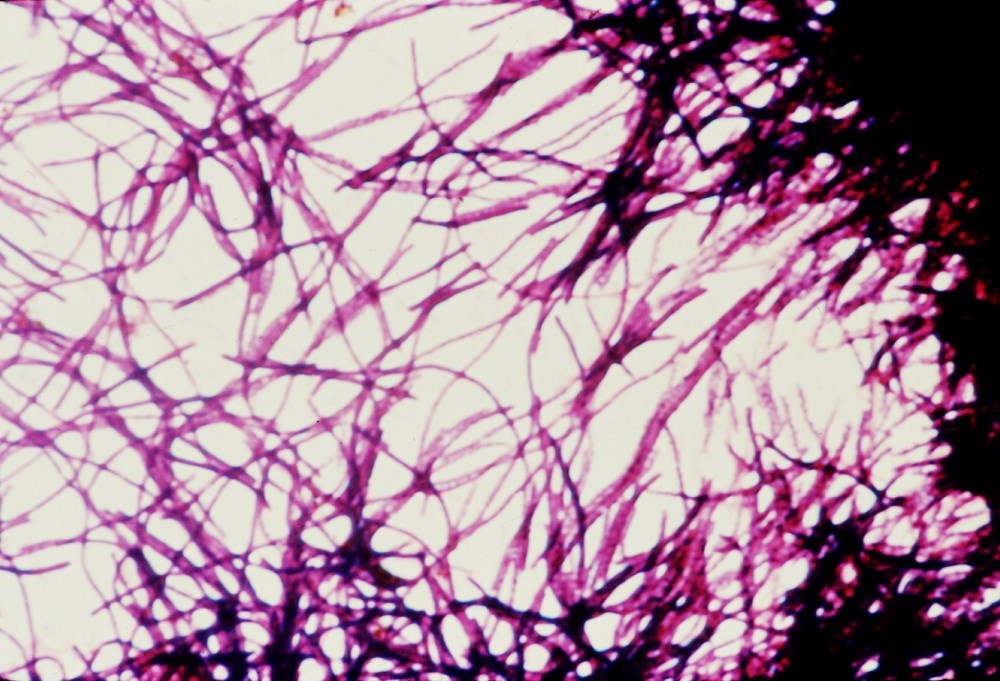 An impression smear photomicrograph of <i>C difficile</i> bacteria grown on cycloserine mannitol blood agar. <i>Photo Credit: CDC/ Dr. Gilda Jones.</i>