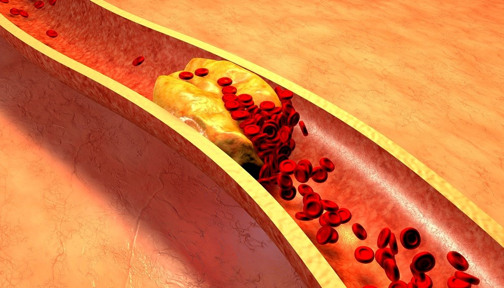Chronic hepatitis B virus infection may actually lower the risk for developing dyslipidemia.