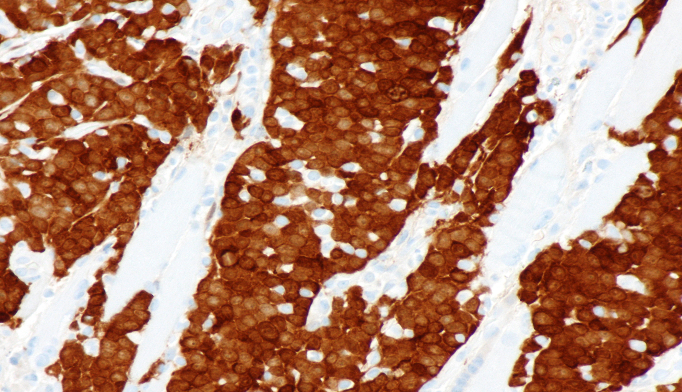 Rates of distant metastases were increased for active smokers and those with T4 tumors. <i>Photo Credit by Nephron, via Wikimedia Commons.</i>