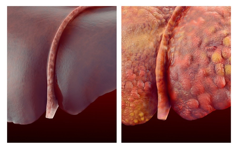 Hepatitis Decompensation Rate Decreased With Statin Use