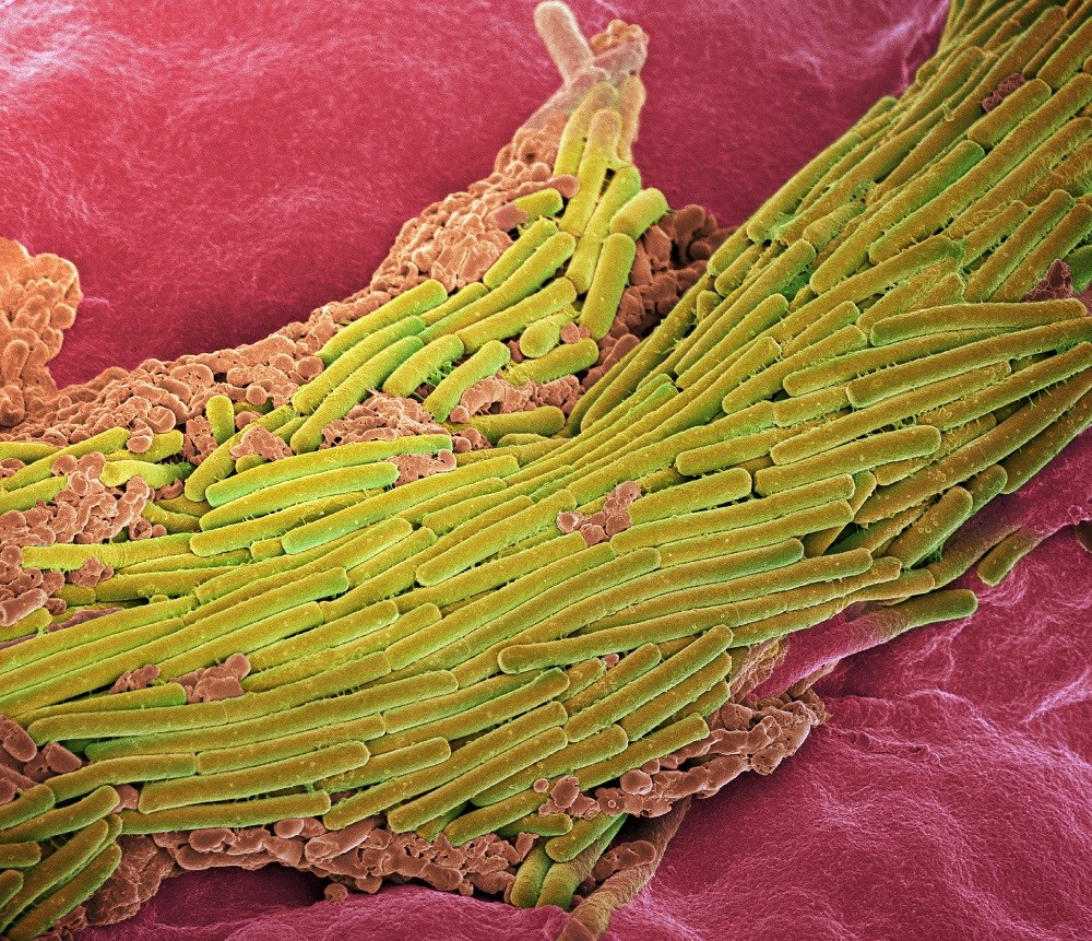 Community-associated <i>Clostridium difficile</i> infection has also emerged as an important cause of diarrheal illness. <i>Photo Credit: Paul Gunning/Science Source.</i>