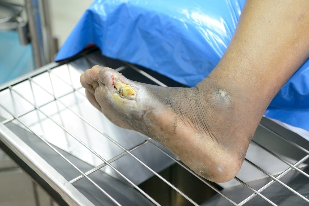 Gram-negative bacteria prevailed at 69.5% in patients with infected diabetic foot ulcer.